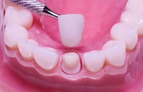 Bildet viser en underkjeve der en løsnet krone holdes med ett instrument over tannen som kronen satt på fra før. Løsnet krone på en tann er en tilstand som må behandles ganske umiddelbart for å unngå skader i tannerven. Vi tilbyr nye tannkroner til lavere pris enn de fleste andre private tannleger