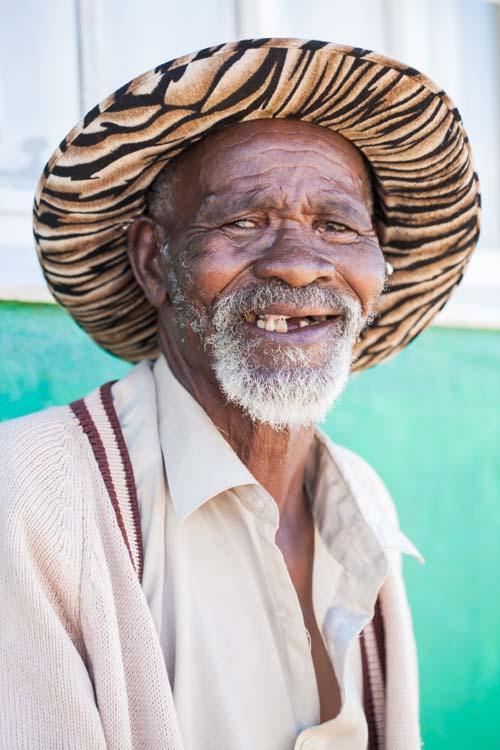 Bildet viser en person (mann) som mangler tenner