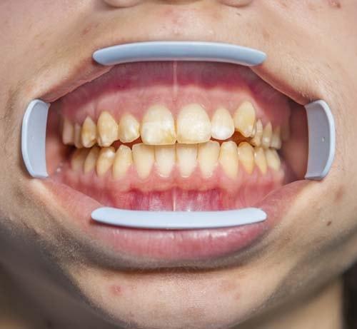 Bildet viser tenner med brune og hvite flekker som et tegn på mineraliseringsforstyrrelser.