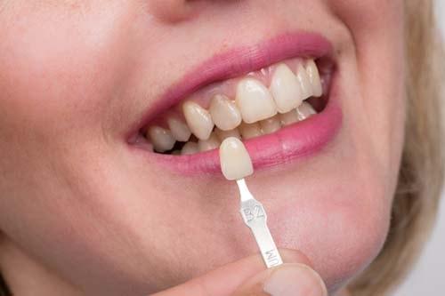 Bildet viser en munn der det finns en misfarget tann blant andre tenner. Under den misfargede tannen holdes en skallfasett som er mye finere og lysere.