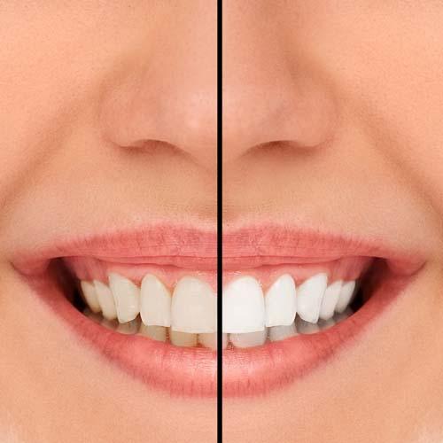Bildet viser tenner i overkjeven der halvparten av tennene på den ene siden er gule og den andre halvdelen er hvite som resultat av tannblekingen. Tannbleking i Oslo utføres av oss på Majorstua Tannlegene enkelt og raskt.