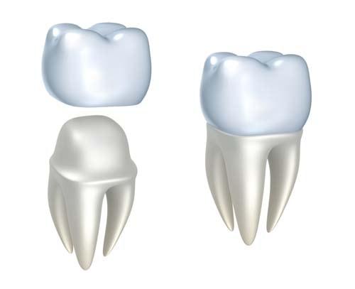 Bildet viser to tenner der den ene tannen er hel og den andre er slipt. En tannkrone holdes over den slipte tannen for å vise hvordan en krone og en tann som skal behandles med krone ser ut.