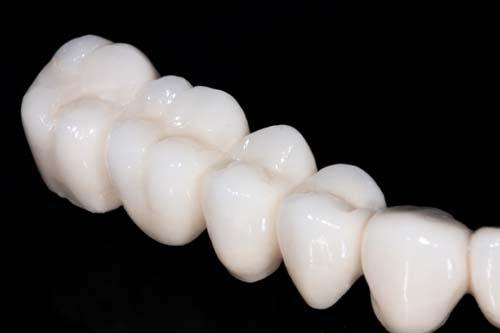 Bildet viser en tannbro som ser ut som flere tannkroner som sitter sammen.