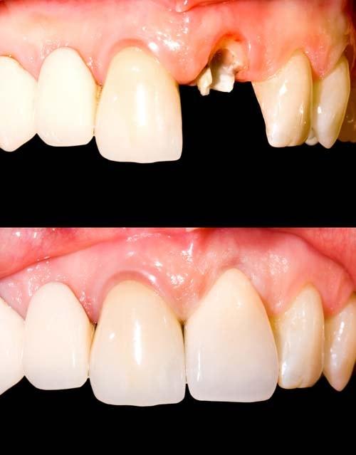 Første bilde viser en knekt fortann og andre bildet viser at tannen er hel og fin etter behandling med tannkrone.