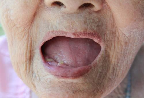 Bildet viser en eldre kvinnes åpne munn med ekstrem munntørrhet.