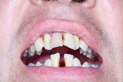 Bildet viser tenner på en pasient med tannkjøttsykdom/pyrea.