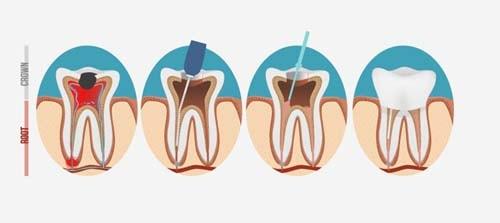 Bilden viser 4 forskjellige stadier av rotfyllingsprosessen. Rotfylling av tann i Oslo utføres grundig av oss på Majorstua Tannlegene.