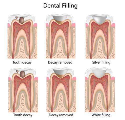 Rubriken tannfylling viser 3 bilder der bilde nummer 1 viser en tann med karies (hull), bilde nummer 2 viser samme tann der hullet er fjernet og klargjort for plastfyllingen. Bilde nummer 3 viser en plastfylling som har blitt lagt i tannen.