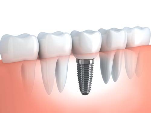 vad kostar ett tandimplantat en tand