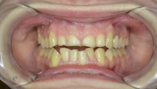 Bildet viser tenner som er lave og nedslitte. Tannslitasje kan forekomme pga gnissing av tenner.